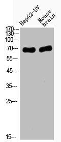 Western Blotting(WB) 2- Acetyl-RELA (K221) Antibody
