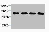 Western Blotting(WB) 1- AKT3 Antibody