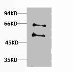 Western Blotting(WB) 1- MYC Antibody
