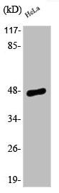 Western Blotting(WB) 1- Phospho-JUN (S63) Antibody