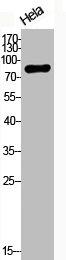 Western Blotting(WB) 2- Phospho-CTNNB1 (T41/S45) Antibody
