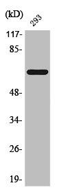 Western Blotting(WB) 1- Phospho-ESR1 (S104) Antibody