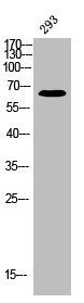 Western Blotting(WB) 1- Phospho-ESR1 (S118) Antibody