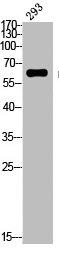 Western Blotting(WB) 2- Phospho-ESR1 (S118) Antibody