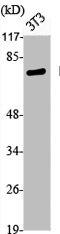 Western Blotting(WB) 2- Phospho-FOXO1 (S319) Antibody