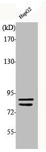 Western Blotting(WB) 1- Phospho-CHUK/IKBKB (S180/181) Antibody