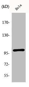 Western Blotting(WB) 1- Phospho-NFKB1 (S893) Antibody