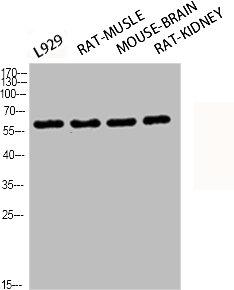 Western Blotting(WB) 2- Phospho-RELA (S276) Antibody