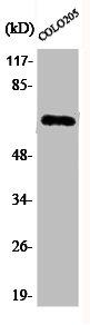 Western Blotting(WB) 1- Phospho-RELA (S536) Antibody