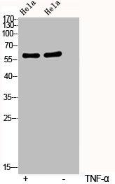 Western Blotting(WB) 2- Phospho-RELA (S536) Antibody