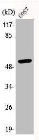 Western Blotting(WB) 1- Phospho-TP53 (S20) Antibody