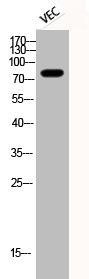 Western Blotting(WB) 1- Phospho-MAPT (S396) Antibody