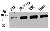 Western Blotting(WB) 2- Phospho-MAPT (S396) Antibody