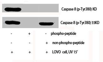 Western Blotting(WB) 1- Phospho-CASP8 (Y380) Antibody