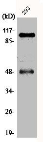 Western Blotting(WB) 1- Phospho-NFKB1 (S337) Antibody