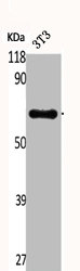 Western Blotting(WB) 2- Phospho-RELA (S311) Antibody