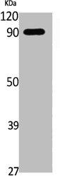 Western Blotting(WB) 1- Phospho-CTNNB1 (S552) Antibody