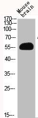 Western Blotting(WB) 2- AKT2 Antibody