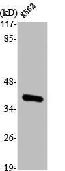 Western Blotting(WB) 2- ANXA3 Antibody