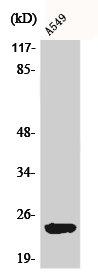 Western Blotting(WB) 1- ARL2BP Antibody