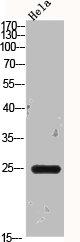 Western Blotting(WB) 2- BCL2L1 Antibody