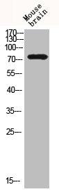 Western Blotting(WB) 2- BTK Antibody
