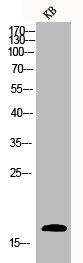 Western Blotting(WB) 1- CASP3 Antibody