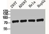 Western Blotting(WB) 2- CTNNB1 Antibody