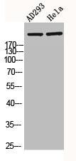 Western Blotting(WB) 2- CREBBP Antibody