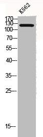 Western Blotting(WB) 2- COL2A1 Antibody