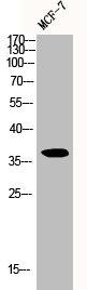 Western Blotting(WB) 1- CCND1 Antibody