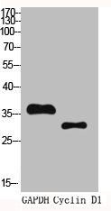 Western Blotting(WB) 2- CCND1 Antibody