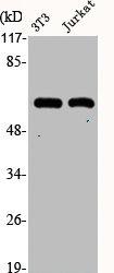 Western Blotting(WB) 2- KRT10 Antibody