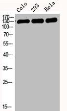 Western Blotting(WB) 2- CDH1 Antibody