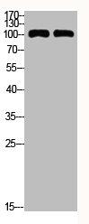 Western Blotting(WB) 3- CDH1 Antibody