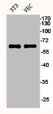 Western Blotting(WB) 2- ESR1 Antibody