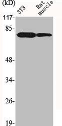 Western Blotting(WB) 2- FOXO1 Antibody