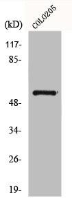 Western Blotting(WB) 1- GCGR Antibody