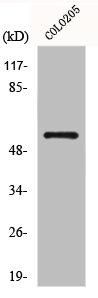 Western Blotting(WB) 2- GCGR Antibody