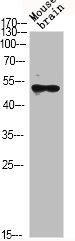 Western Blotting(WB) 2- GSK3B Antibody