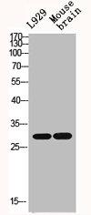 Western Blotting(WB) 2- IL1B Antibody