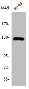Western Blotting(WB) 1- JAK2 Antibody