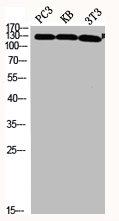 Western Blotting(WB) 2- JAK2 Antibody