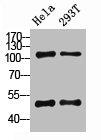 Western Blotting(WB) 2- NFKB1 Antibody