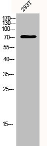 Western Blotting(WB) 1- TP73 Antibody