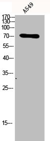 Western Blotting(WB) 3- TP73 Antibody