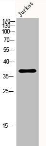 Western Blotting(WB) 1- SERPINE1 Antibody