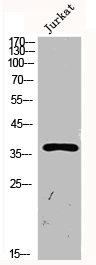 Western Blotting(WB) 2- SERPINE1 Antibody