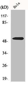 Western Blotting(WB) 1- PARK2 Antibody