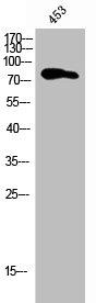 Western Blotting(WB) 1- PIK3R2 Antibody